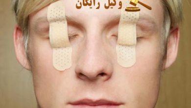 تصویر دیه چشم طبق قانون مجازات اسلامی